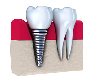 Suwanee & Oakwood Dental Implants